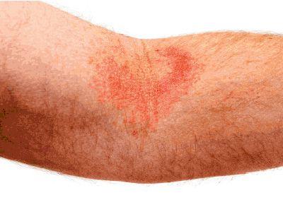 Лечение атопического дерматита у взрослых на лице фото