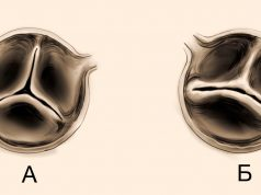 Двустворчатый аортальный клапан – распространенный порок сердца