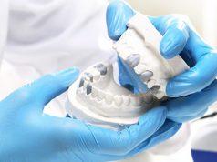 Зубное протезирование